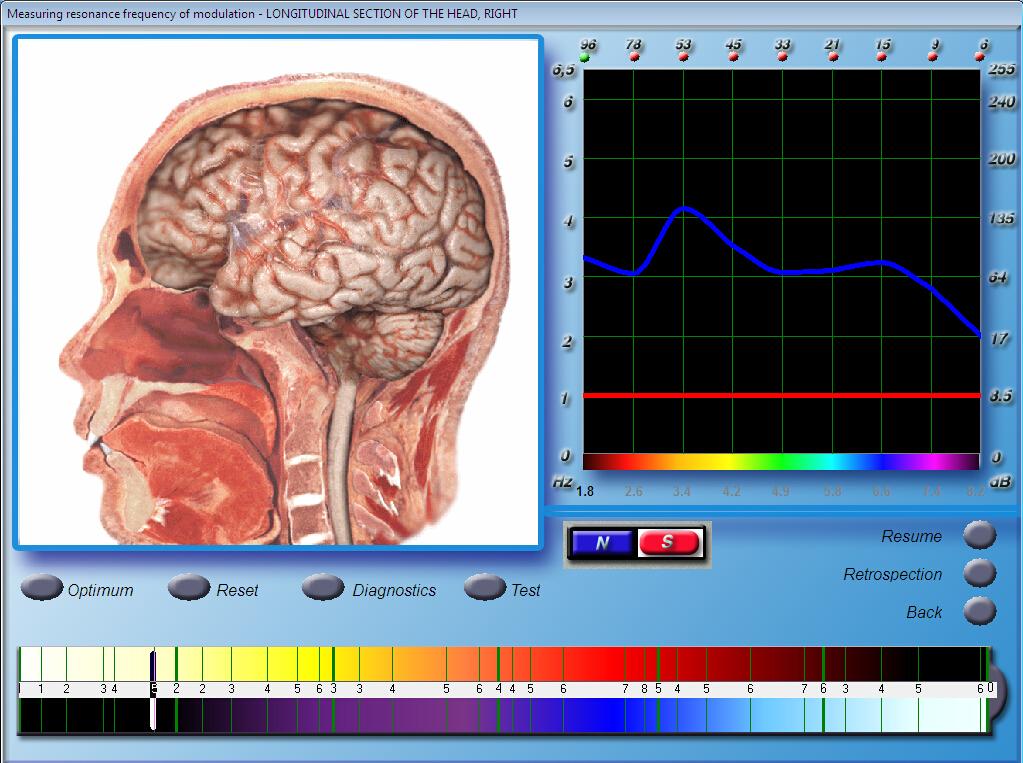Latest 3D NLS Diagnostics Sub Health Analyzer Quantum Bioresonance